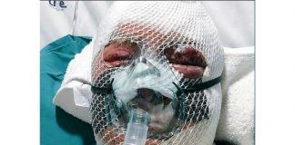 Jan Terburg (81) was severely tortured during Burgersdorp farm attack