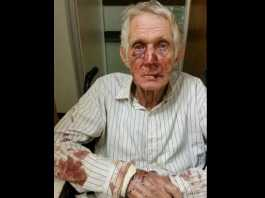 Giep-Botha-attacked-on-his-farm-in-Hertzogville