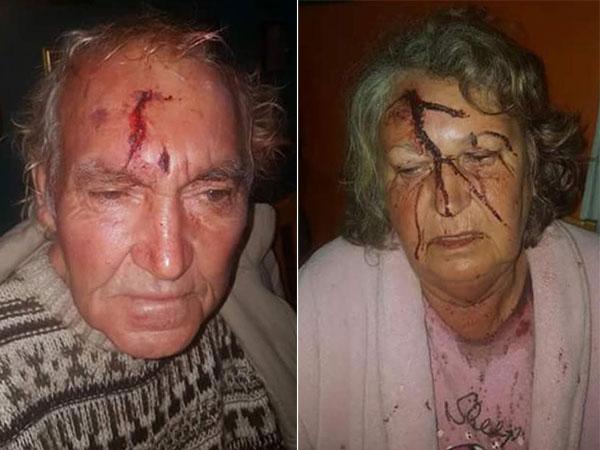 Farm attack, 70-Year-old Farmer beaten Tzaneen. Photo: Boere Krisis Aksie