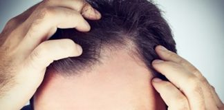 5 Important Points to be noted while Considering the Hair Transplant