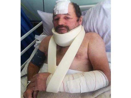 Couple attacked by panga wielding intruder, police uninterested, Humansdorp. Photo: BKA