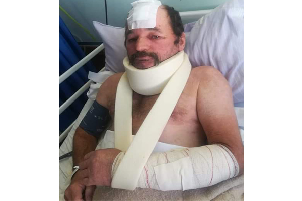 Couple attacked by panga wielding intruder, police uninterested, Humansdorp. Photo: BKA