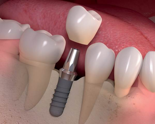 Fitness Implications of Dental Implants