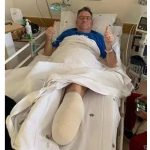 Farm attack: Man's foot amputated after being shot, Centurion. Photo: BKA