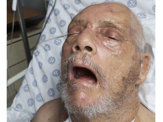 5 Weeks after Hartbeespoort farm attack, elderly man still critical. Photo: Andrew Brown Facebook